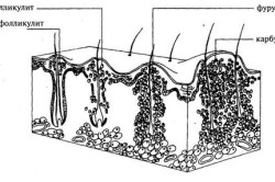 Схема фурункулеза